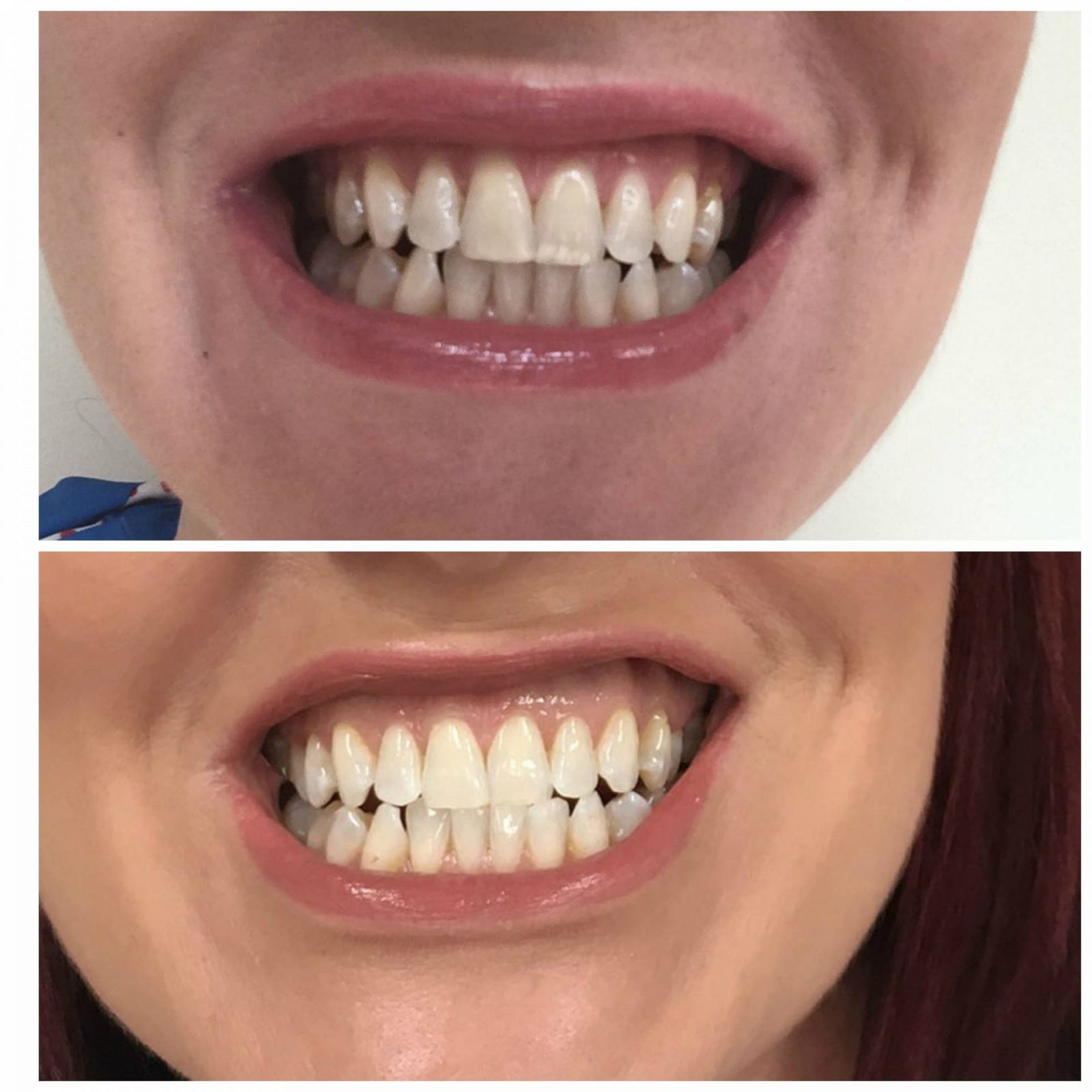 Affordable Teeth Whitening For Coffee Addicts before and after photos